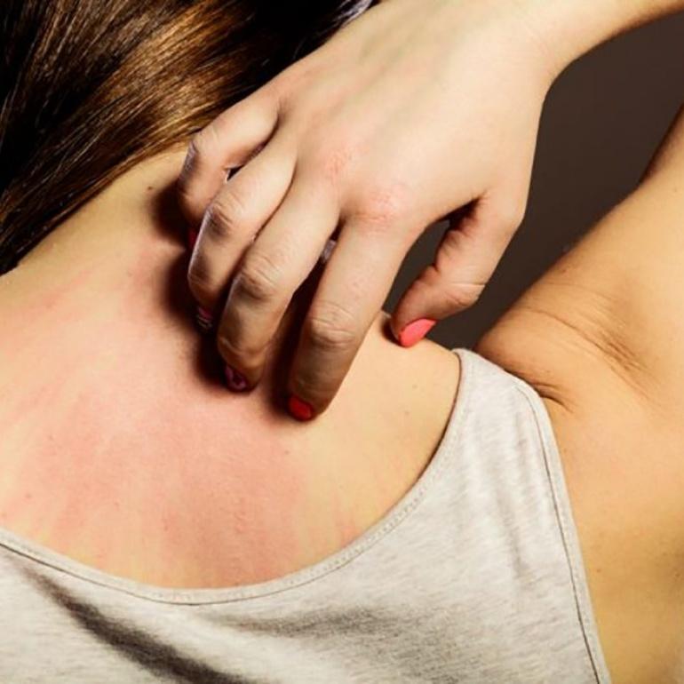 Dermatite: come intervenire con un rimedio naturale per evitare il cortisone